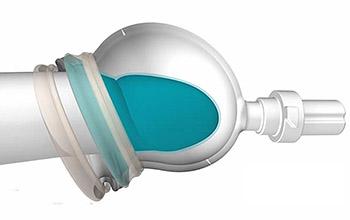 вакуумно адгезионный экстендер