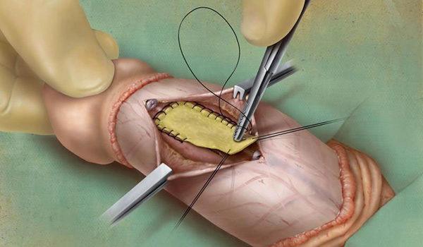 операция фаллопластика